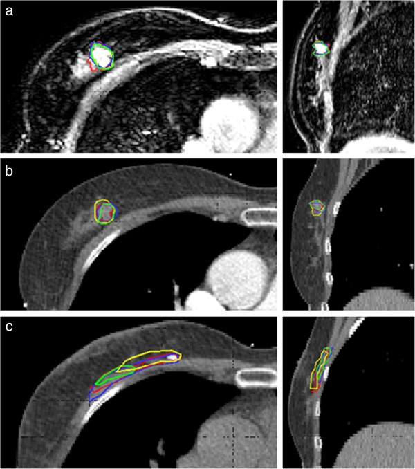 manual delineation of mri images